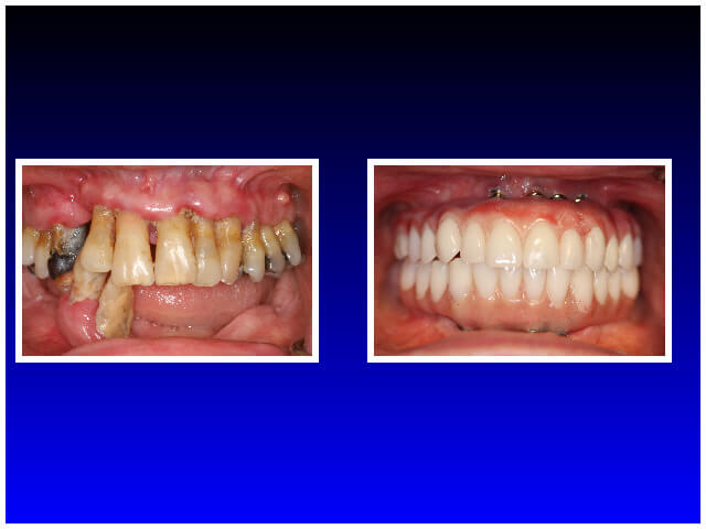 Dental Implants Patient Case